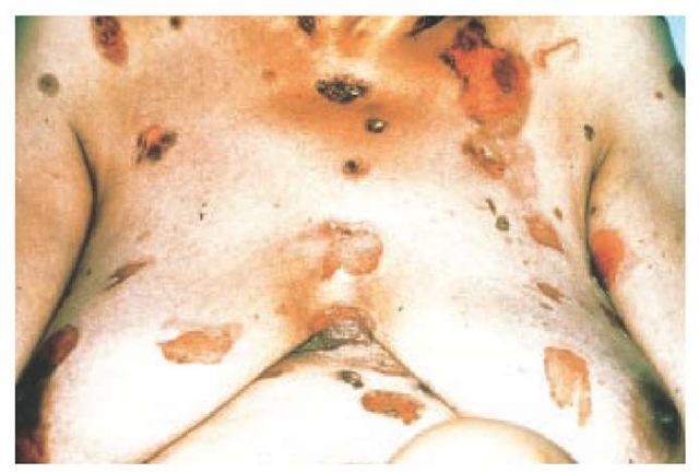 Pemphigus vulgaris developed in this 59-year-old woman who took penicillamine as treatment for rheumatoid arthritis.