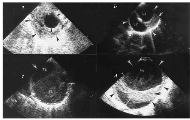 Thoracic Aortic Aneurysm Echocardiogram