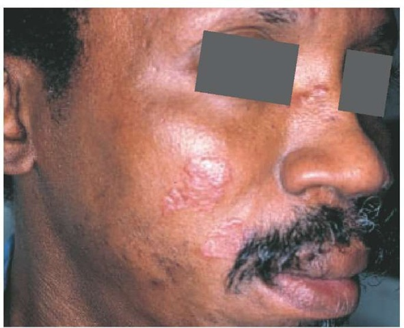 Characteristic facial lesions of sarcoidosis, called lupus pernio, are shown.