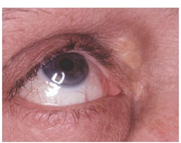 Xanthelasma and arcus senilis are shown in a patient with hypercholesterolemia.