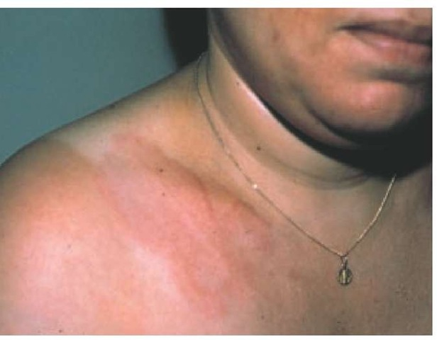 Transient annular erythematous rashes (erythema marginatum) typically occur in patients with rheumatic fever.