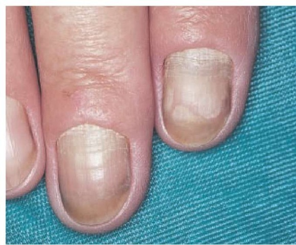 Yellow nails are a sign of underlying disease of the lymphatics in patients with yellow nail syndrome.
