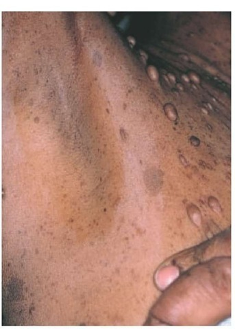 Coetaneous Manifestations of Systemic Diseases Part 3
