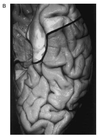 Anterior Temporal Lobectomy Indications And Technique