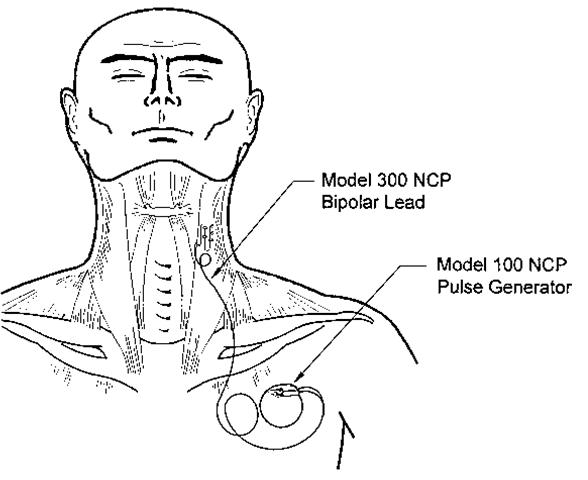 vagal nerve stimulation  indications and technique