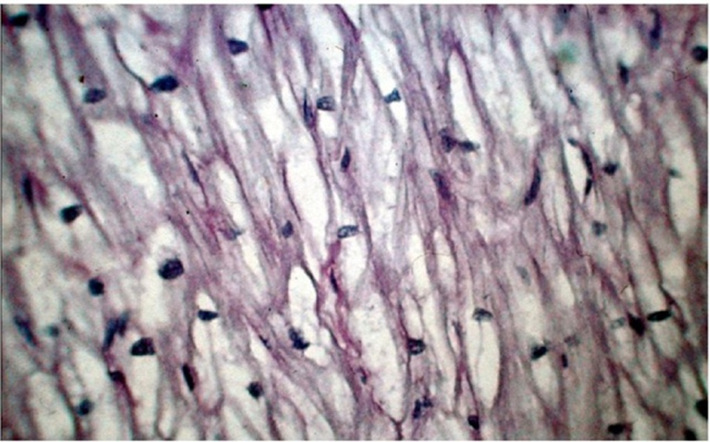 Typical lacework appearance of the myocardium in a patient with type II Pompe's disease. There is normal alignment of the vacuolated myocardial fibers with glycogen storage.