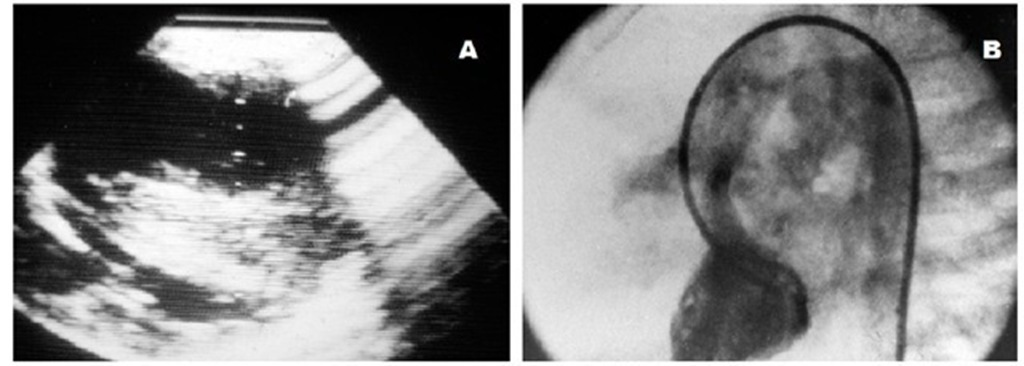 Two dimensional echocardiogram (A) and left ventricular cineangiography (B) in a patient with tetralogy of Fallot six months after a right modified Blalock-Taussig shunt showing severe ventricular septal hypertrophy, a hypoplastic left ventricle and a dilated aorta overriding a ventricular septal defect