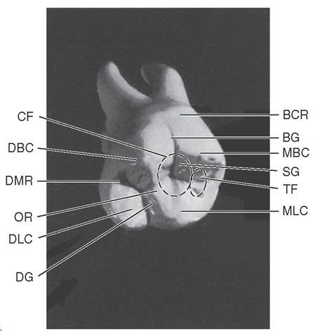 Some landmarks on the maxillary first molar. BCR, Buccocervical ridge; BG, buccal groove; MBC, mesiobuccal cusp; SG, supplemental groove; TF, triangular fossa; MLC, mesiolingual cusp; DG, developmental groove; DLC, distolingual cusp; OR, oblique ridge; DMR, distal marginal ridge; DBC, distobuccal cusp; CF, central fossa.