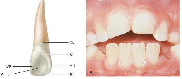 A, Maxillary right lateral incisor (lingual aspect). CL, Cervical line;CI, cingulum (also called the linguocervical rìdge); MR, marginal ridge; IR, incisal ridge; LF, lingual fossa. B, Mamelons on erupting, noncontacting central incisors.