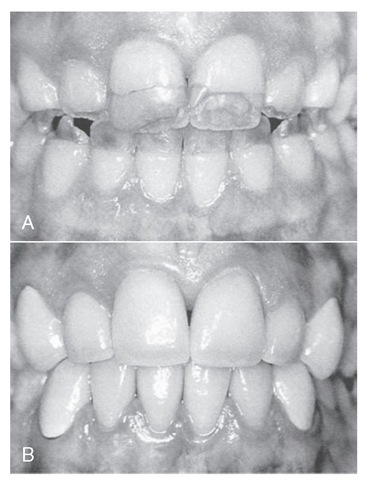 A, Chronological developmental disorder involving all the anterior teeth. B, Illustration of restored teeth just after completion, taking in account esthetics, occlusion, and periodontal health. Note that the gingival response is not yet resolved.