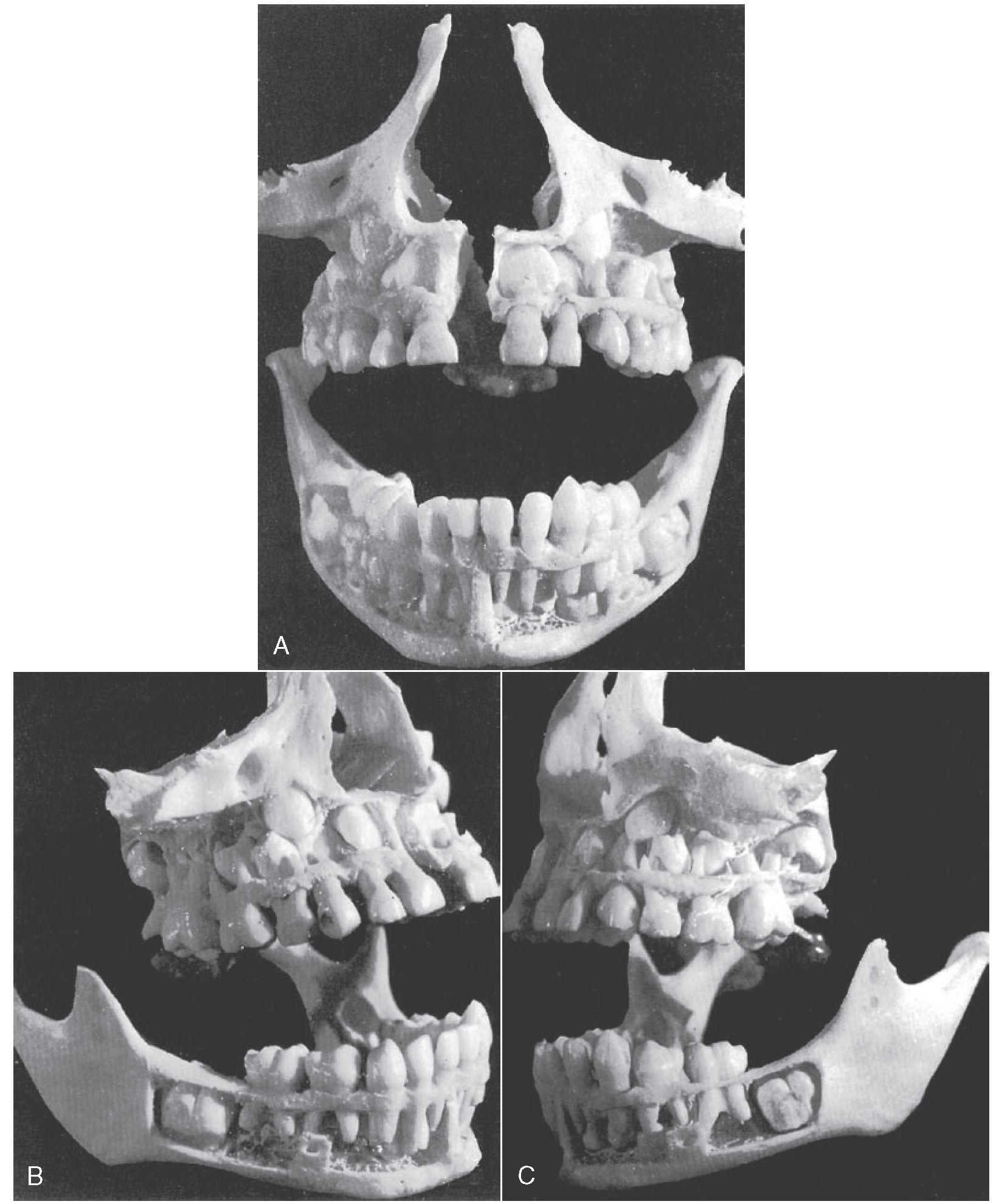 The Primary (Deciduous) Teeth (Dental Anatomy, Physiology and ...