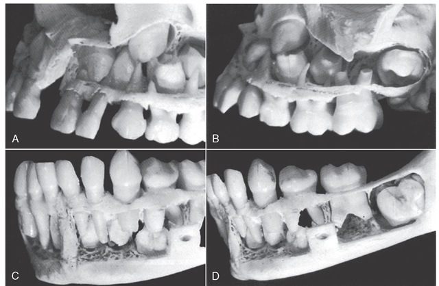 A sectional close-up of the specimen in Figure 3-4. A, The left side of the maxilla. The developing crowns of the central and lateral incisors, the canine, and two premolars are clearly in view. B, The left side of the maxilla, posteriorly. The molar relationship, both deciduous and permanent, is accented here. C, This is a good view of the mandible anteriorly and to the left. Permanent central and lateral incisors and the canine may be seen. Notice that the permanent canine develops distally to the primary canine root. D, Posteriorly, examination of the specimen mandible fails to find crown development of permanent premolars. However, the hollow spaces showing between the roots of primary molars may indicate a loss of material during the difficult process of dissection. The first permanent molar has progressed in crown formation, but the maturation of the whole tooth with alignment is far behind its opposition in the maxilla above it (see Figure 3-4, C).