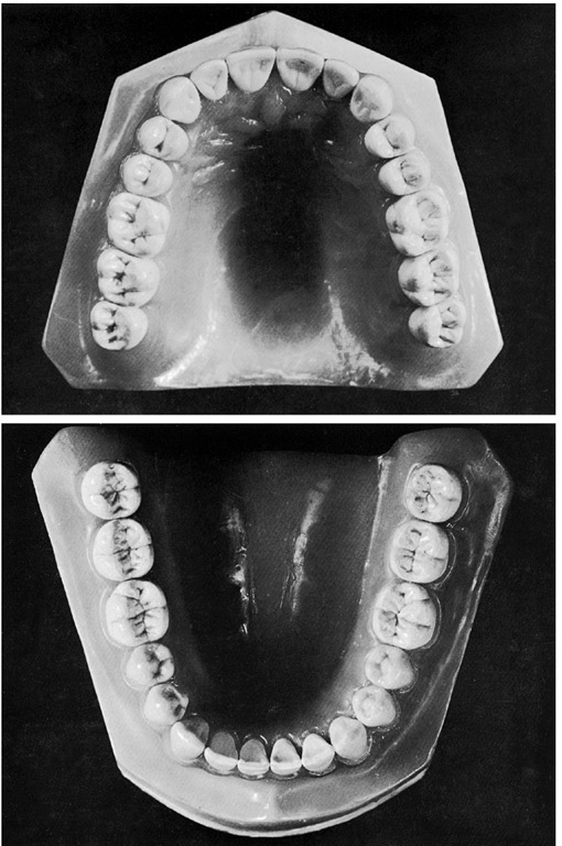 Occlusal view of the models shown in Figures 1-16 and 1-17.