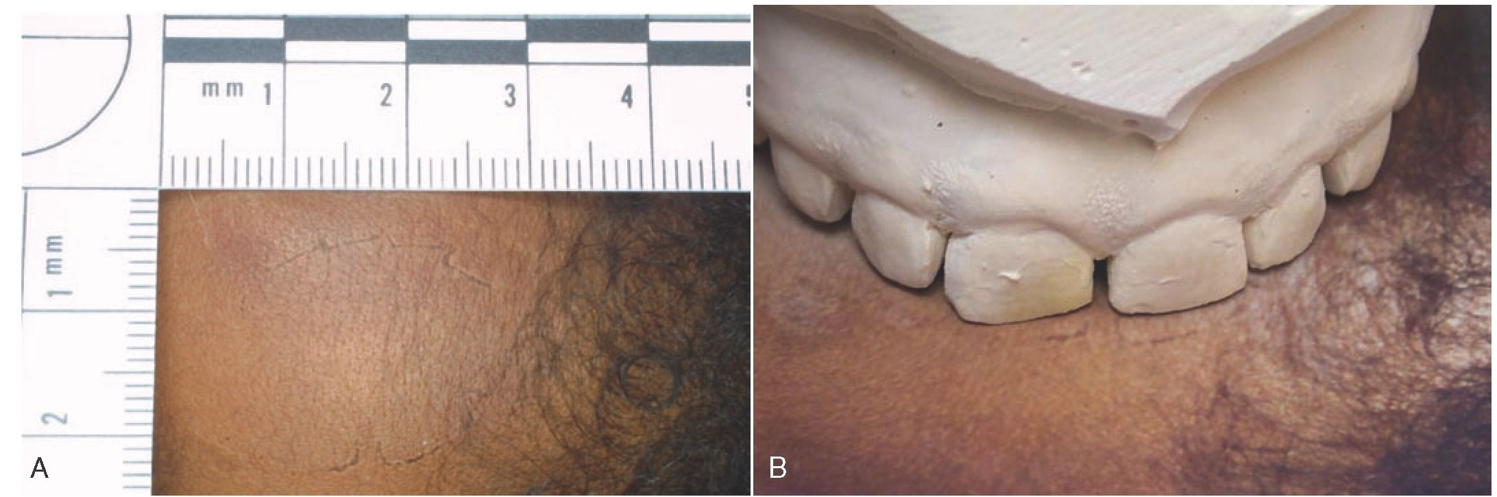 case study forensic odonotlogy Forensic odontology is the application of dental principles to  cases ted bundy the most famous bite mark case the bite mark was on the body of a victim  &ndash a free powerpoint ppt presentation (displayed as a flash slide show) on powershowcom - id: 1c7635-zdc1z.