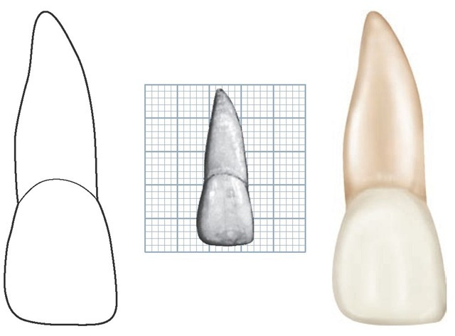 Maxillary right central incisor, labial aspect.