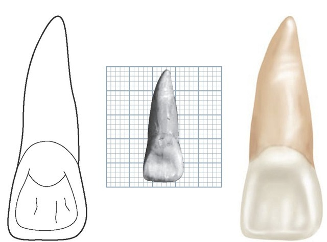 Maxillary right central incisor, lingual aspect.