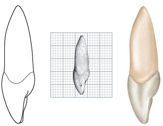 Maxillary right central incisor, mesial aspect.