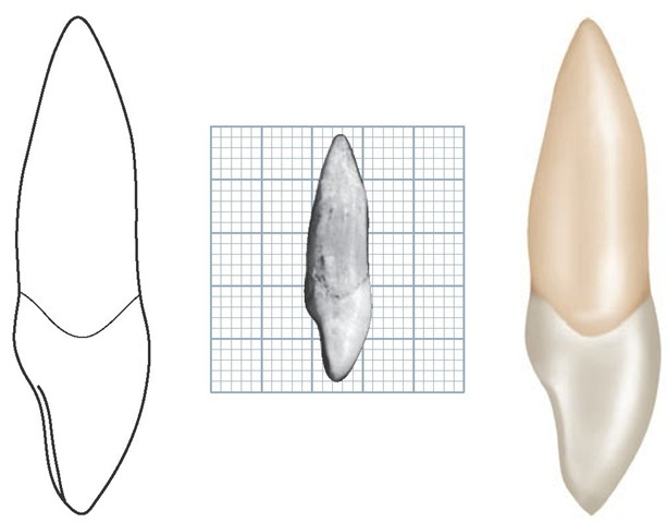 Maxillary right central incisor, distal aspect.