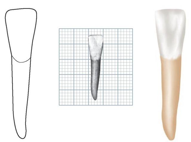 Permanent Sketch Book: The Permanent Mandibular Incisors (Dental Anatomy
