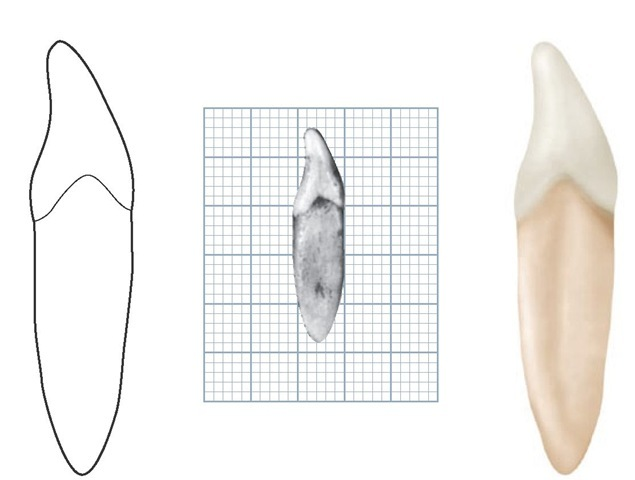dental anatomy sheet Division into thirds, line angles, and point angles for purposes of description, the crowns and roots of teeth have been divided into thirds, and junctions of the crown surfaces are described as line angles and point angles.