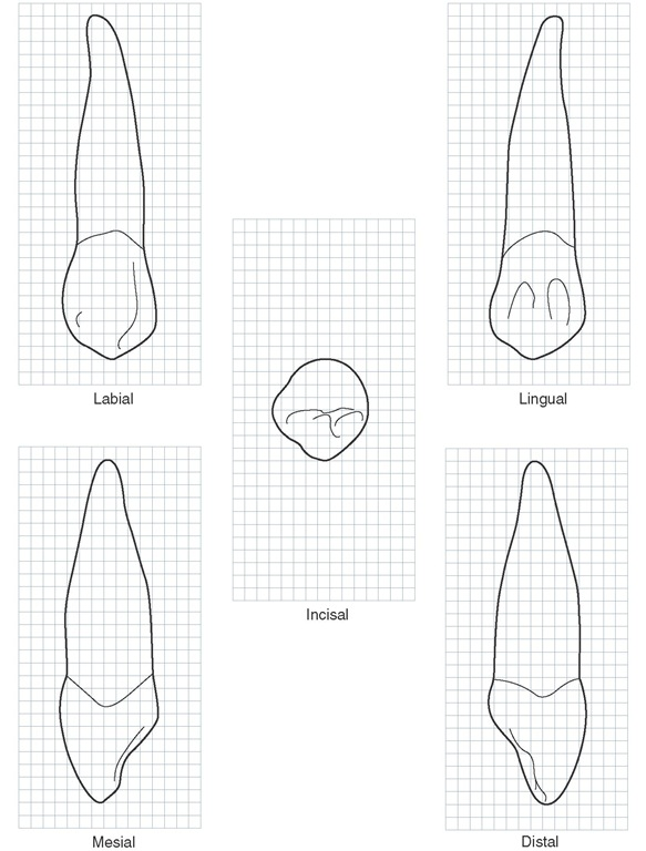 Maxillary right canine. Graph outlines of five aspects are shown. (Grid = 1 sq mm.)