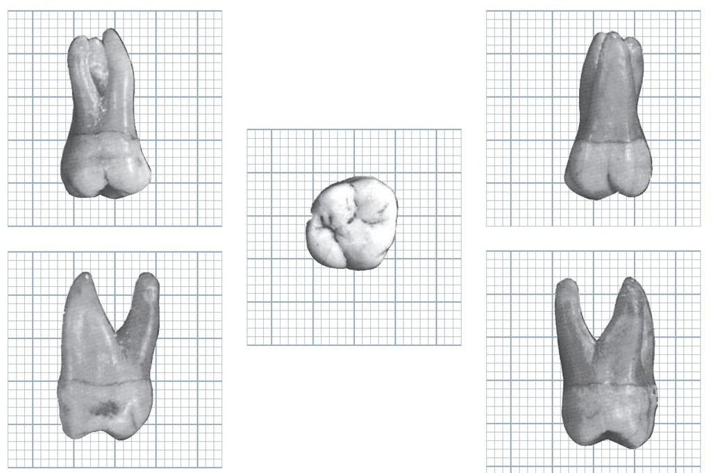 Maxillary right first molar. When viewing the mesial and distal aspects, note the curvature or bulge on the crown at the cervical third below the cementoenamel junction.