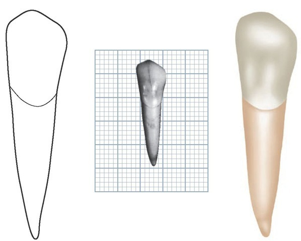 Mandibular left canine, labial aspect. (Grid = 1 sq mm.)