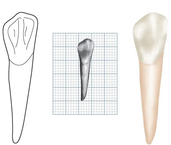 Mandibular left canine, lingual aspect. (Grid = 1 sq mm.)