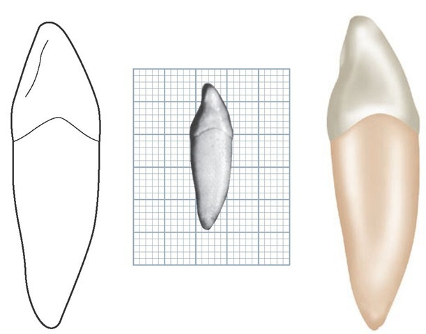 Mandibular left canine, mesial aspect. (Grid = 1 sq mm.)