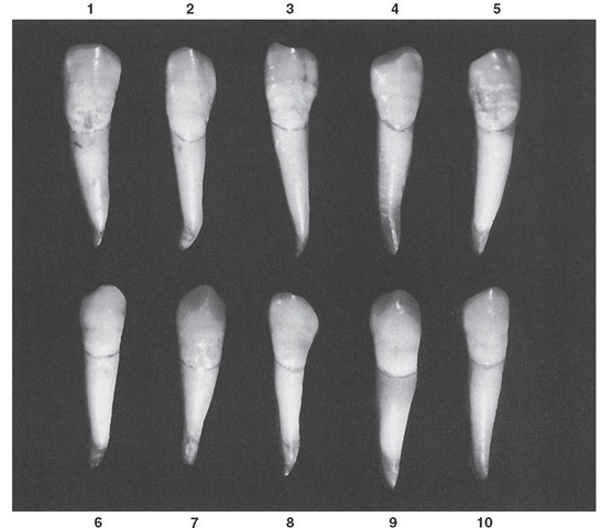 Mandibular canine, labial aspect. Ten typical specimens are shown.