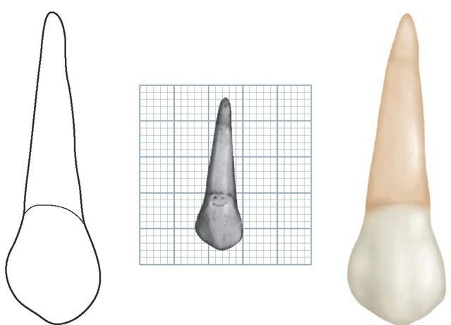 Maxillary left first premolar, buccal aspect. (Grid = 1 sq mm.)