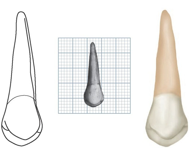 Maxillary left first premolar, lingual aspect. (Grid = 1 sq mm.)