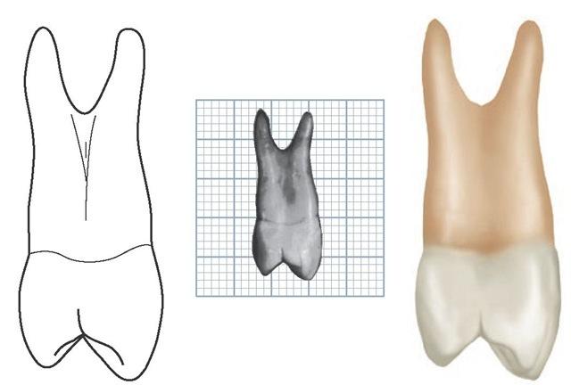 Maxillary left first premolar, mesial aspect. (Grid = 1 sq mm.)