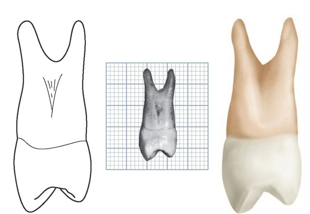 Maxillary left first premolar, distal aspect. (Grid = 1 sq mm.)