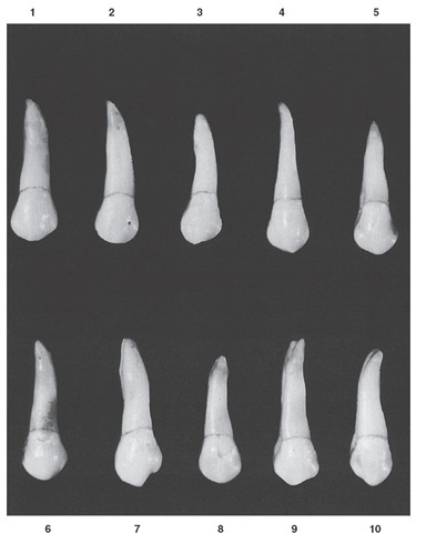 Maxillary first premolar, buccal aspect. Ten typical specimens are shown.