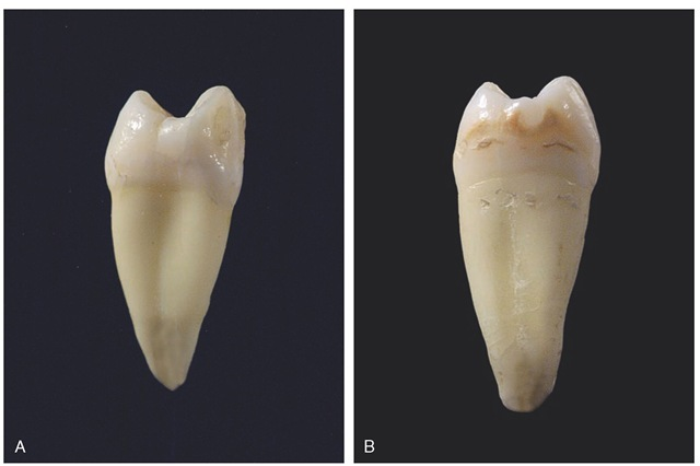A, Mesial view of a maxillary right first premolar demonstrating single root and mesial crown concavity. B, Mesial view of a maxillary right second premolar demonstrating single root and no mesial crown concavity.