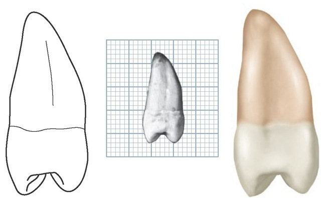 Maxillary left second premolar, distal aspect. (Grid = 1 sq mm.)