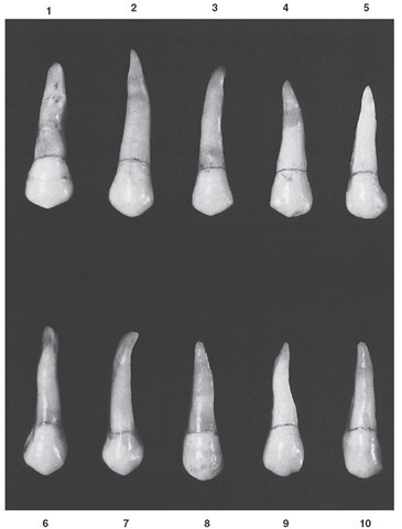 Maxillary second premolar, buccal aspect. Ten typical specimens are shown.