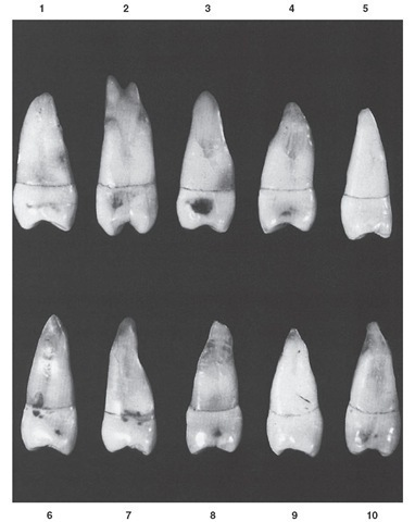 Maxillary second premolar, mesial aspect. Ten typical specimens are shown.