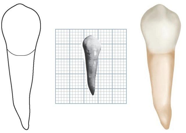 The Permanent Mandibular Premolars Dental Anatomy Physiology And