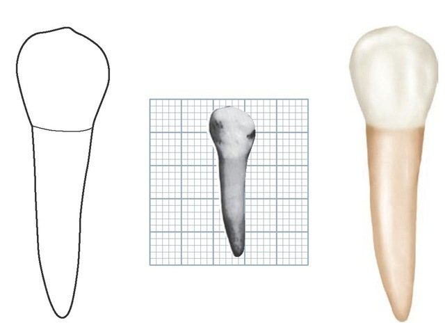 Mandibular left second premolar, buccal aspect. (Grid = 1 sq mm.)