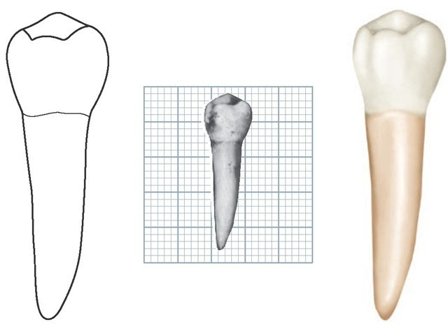 Mandibular left second premolar, lingual aspect. (Grid = 1 sq mm.)