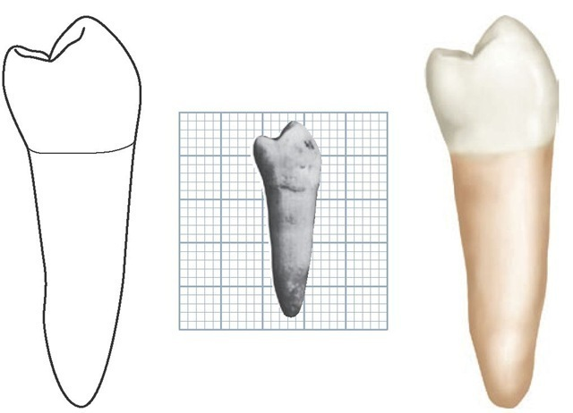 Mandibular left second premolar, mesial aspect. (Grid = 1 sq mm.)