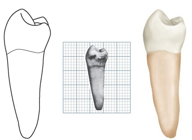 Mandibular left second premolar, distal aspect. (Grid = 1 sq mm.)