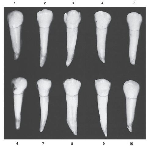 Mandibular second premolar, occlusal aspect. Ten typical specimens are shown.