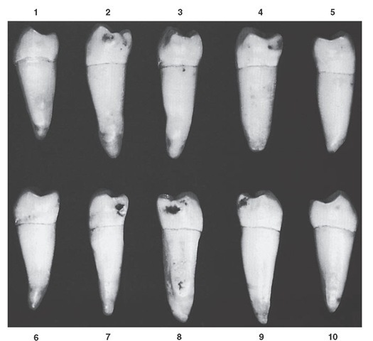Mandibular second premolar, mesial aspect. Ten typical specimens are shown.