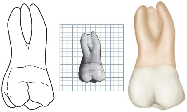 Maxillary right first molar, buccal aspect. (Grid = 1 sq mm.)