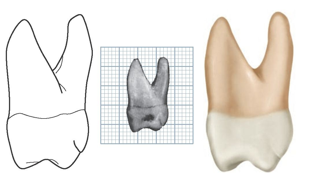Dental anatomy of maxillary first molar