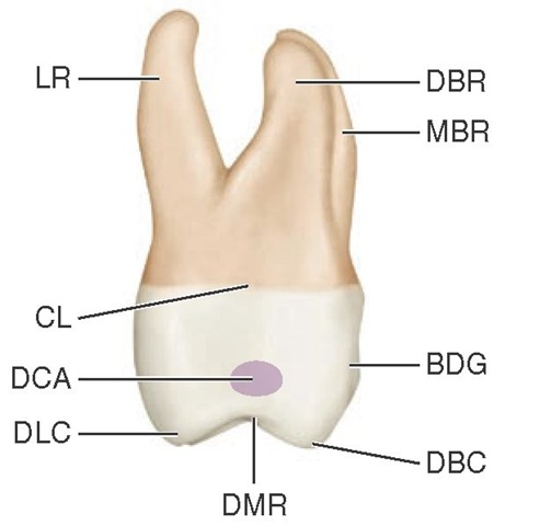 Maxillary right first molar, distal aspect. DBR, Distobuccal root; MBR, mesiobuccal root; BDG, buccal developmental groove; DBC, distobuccal cusp; DMR, distal marginal ridge; DLC, distolingual cusp; DCA, distal contact area; CL, cervical line; LR, lingual root.