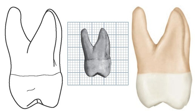 Maxillary right first molar, distal aspect. (Grid = 1 sq mm.)